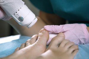 Laserterapie Behandlung am Fuß Lasertherapie Hautarzt Köln Dr. Kruppa Dr. Larsen