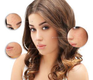 Hautarzt Köln Dermatologie Allergiebehandlung Lasertherapie der Haut